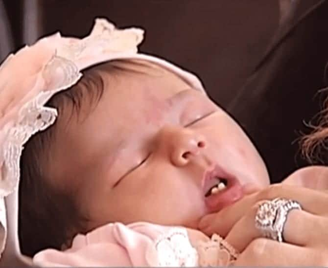 Doctors Were Shocked When They Saw This Baby's Sweet Smile!