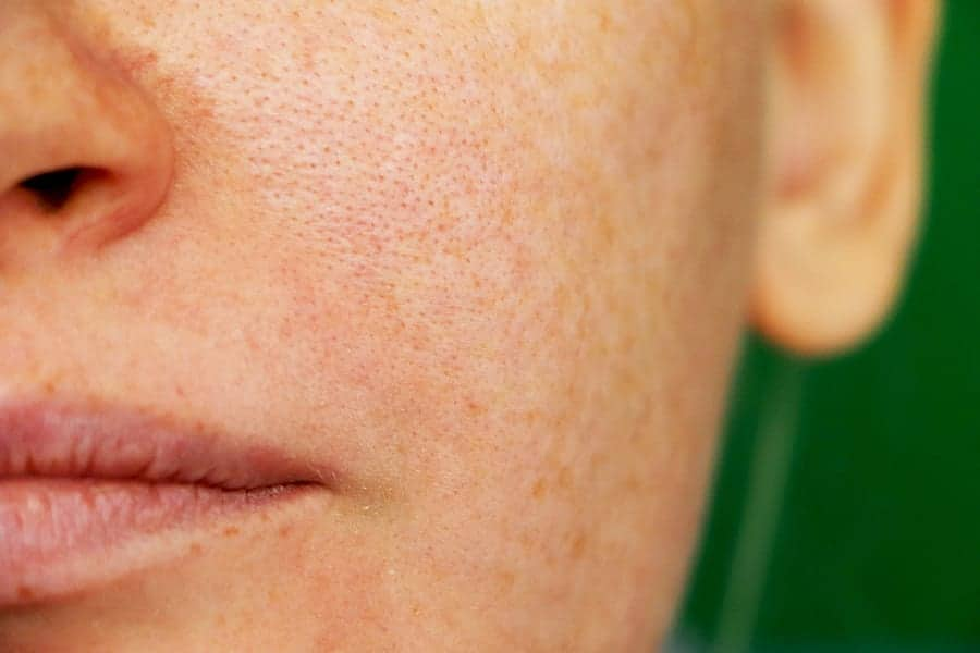 Say Bye-Bye To Chloasma And Dark Spots With These Helpful Tips